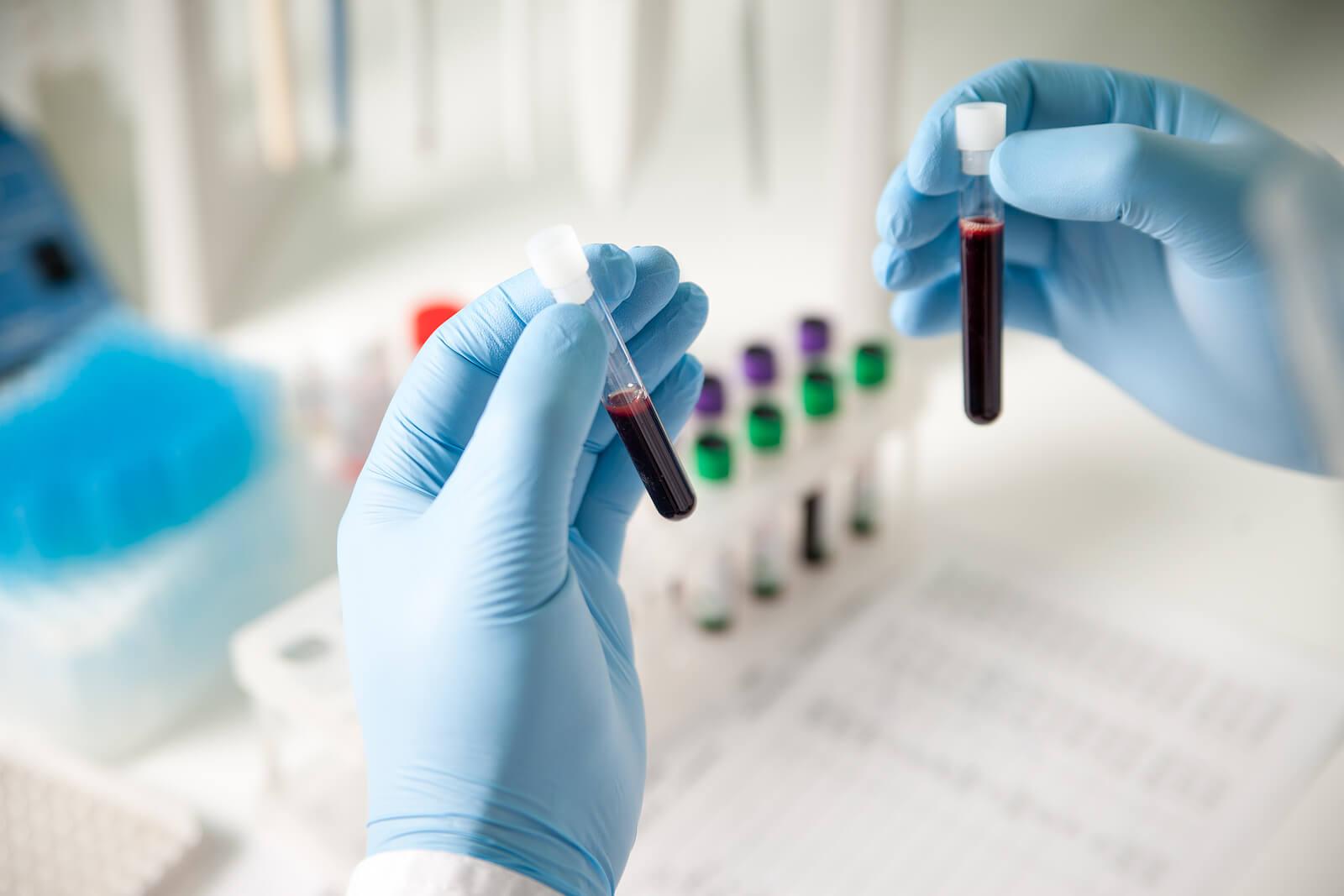 Echantillons de sang en laboratoire.