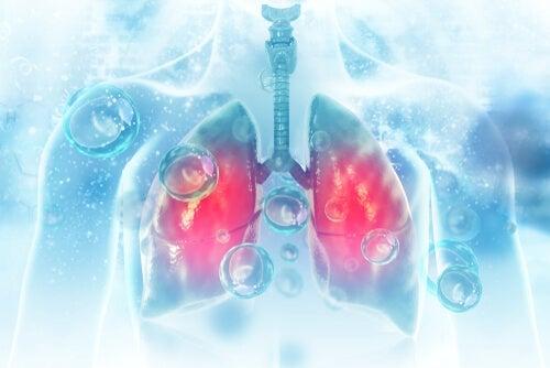 Che cos'è la polmonite?
