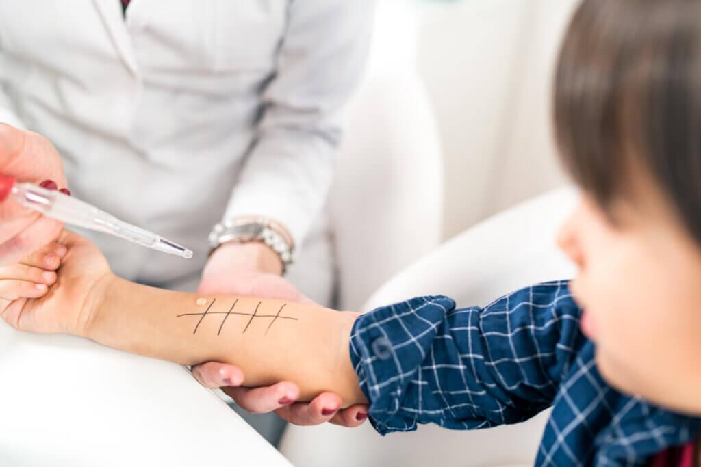 Teste de alergia em uma criança.