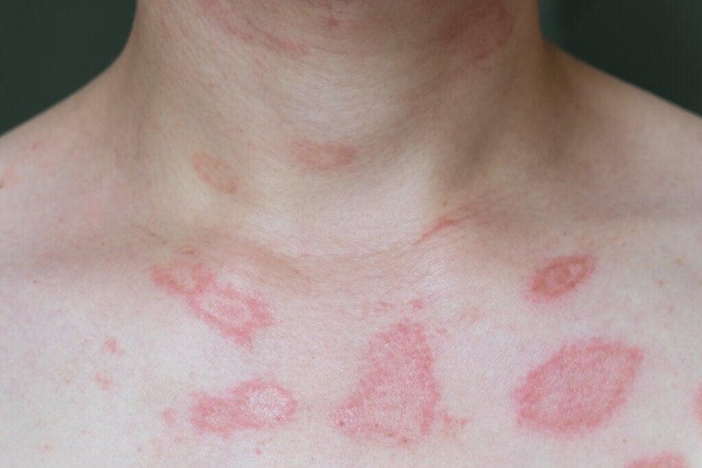 Alergias en la piel: todo lo que debes saber