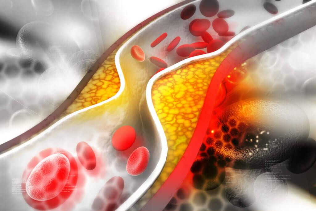 A trombose é definida como o aparecimento de um trombo em uma veia ou artéria, o que pode dificultar ou impedir diretamente o fluxo sanguíneo.