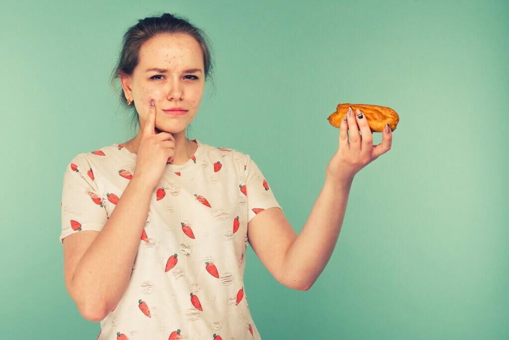 ¿La alimentación influye en el acné?