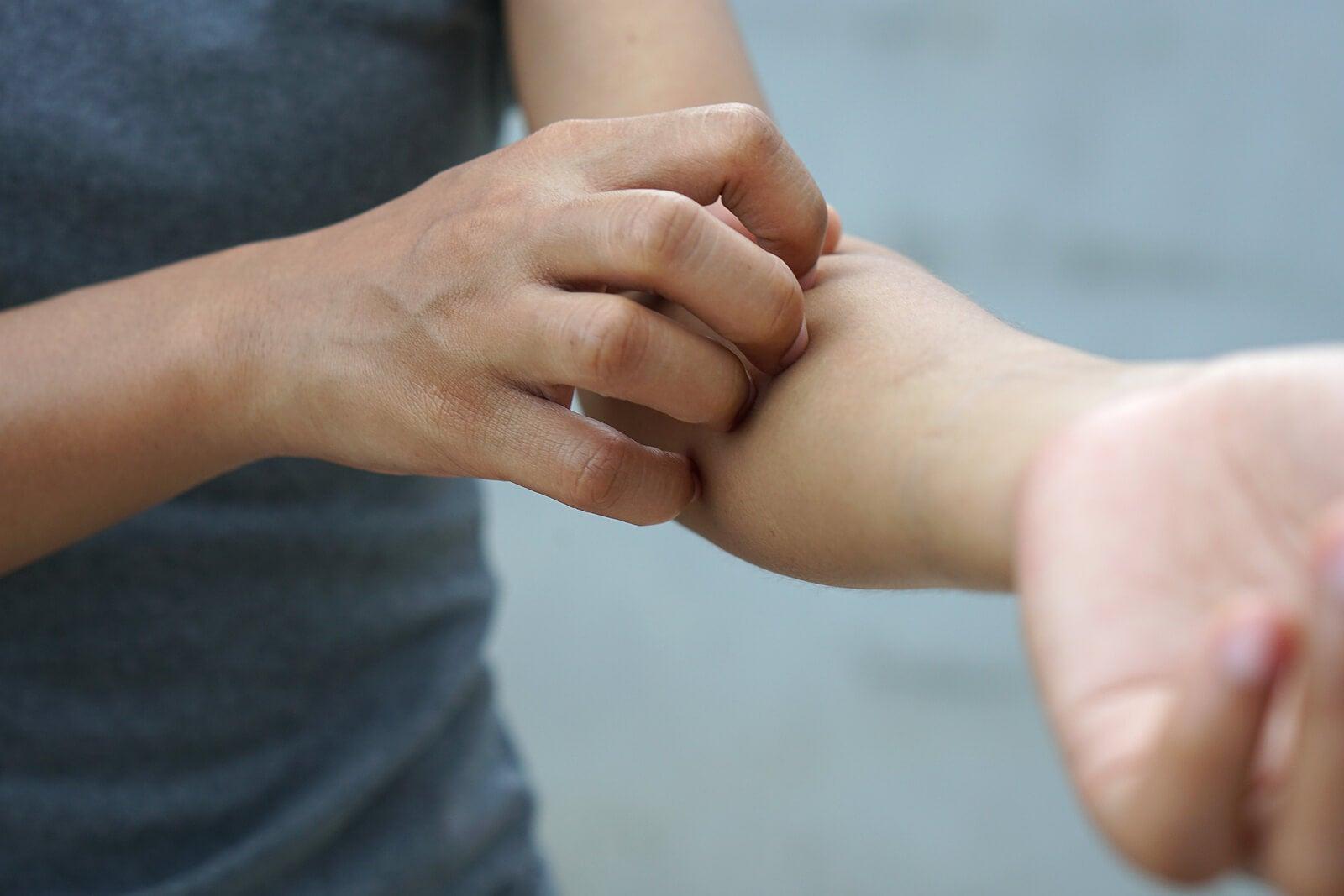 Une femme qui se gratte le bras.