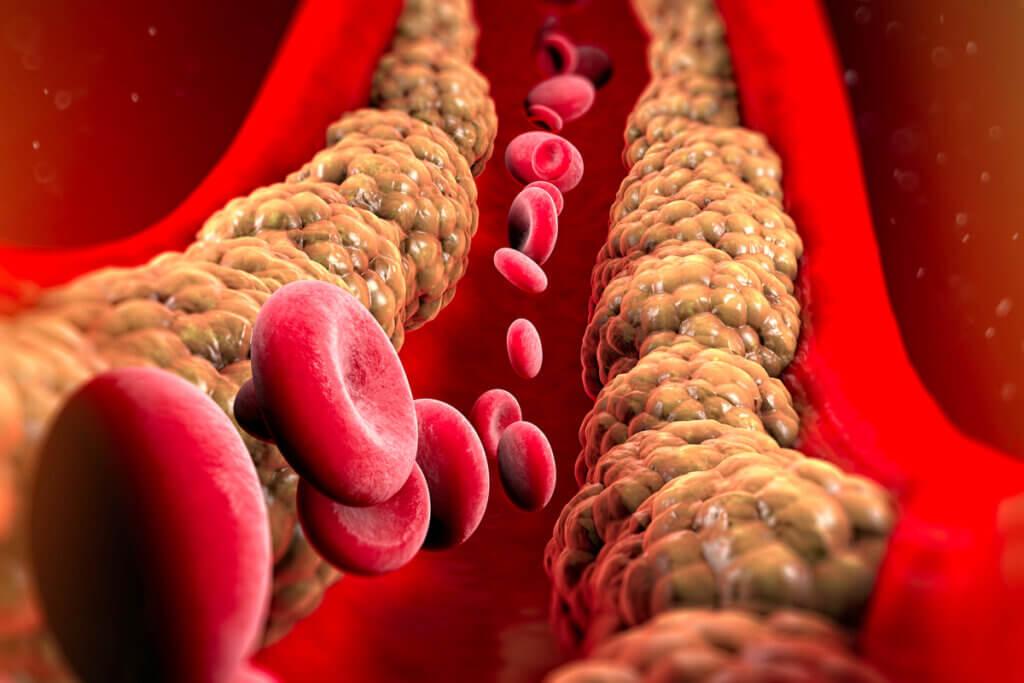 Colesterol en las arterias.
