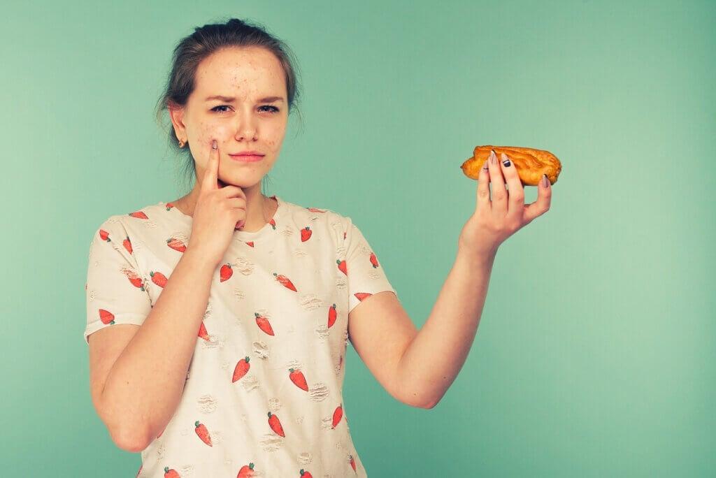 A dieta influencia na acne?