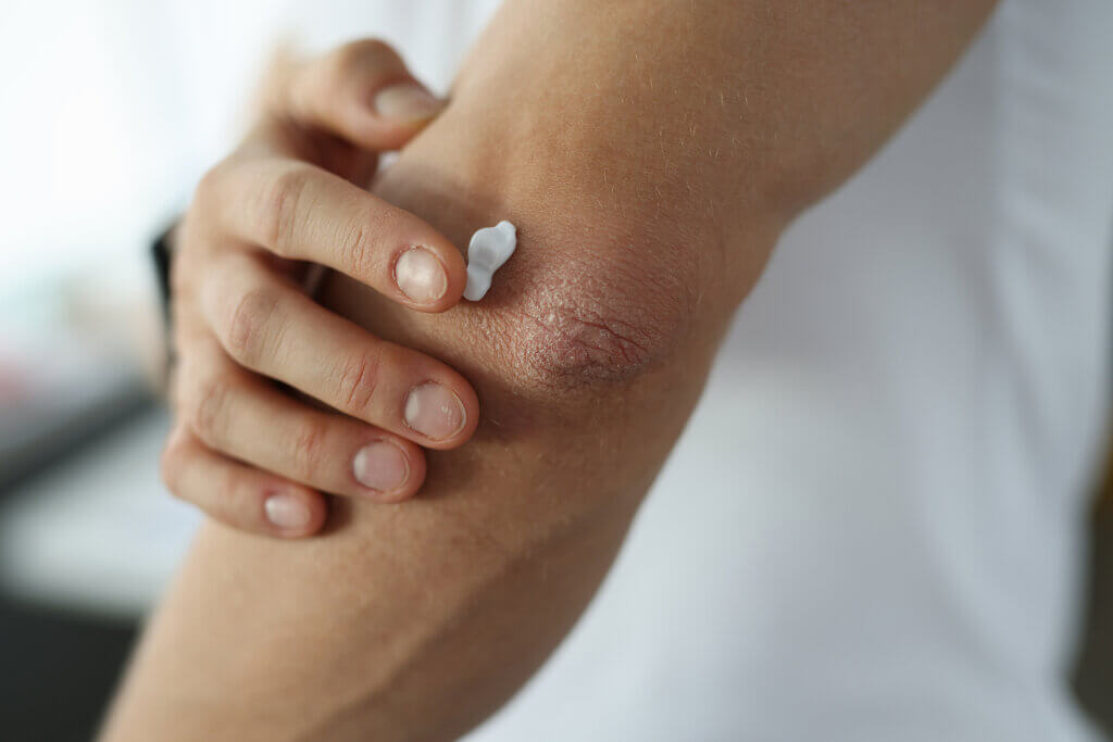 Tratamiento de la dermatitis de contacto