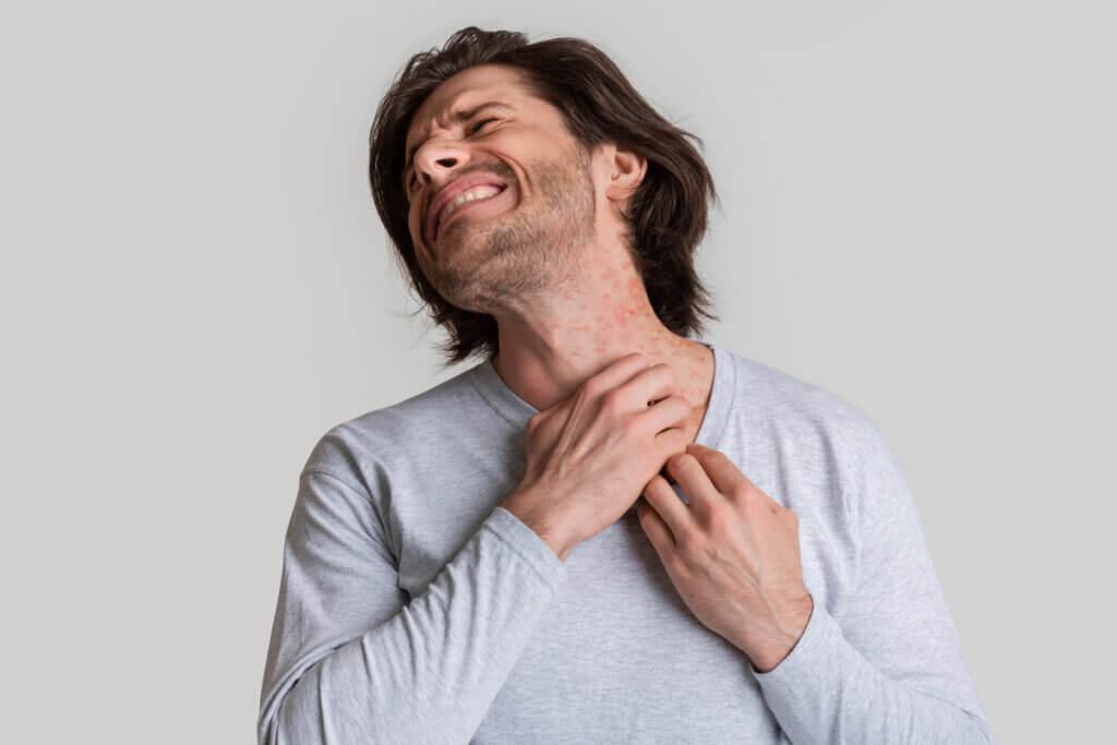 Symptômes de la dermatite de contact
