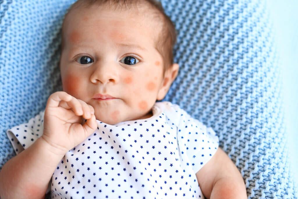 Eczéma du bébé: tout ce qu'il faut savoir
