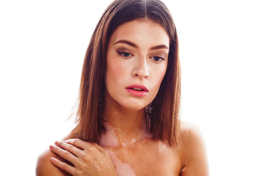 Vitiligo: symptômes, causes et traitement