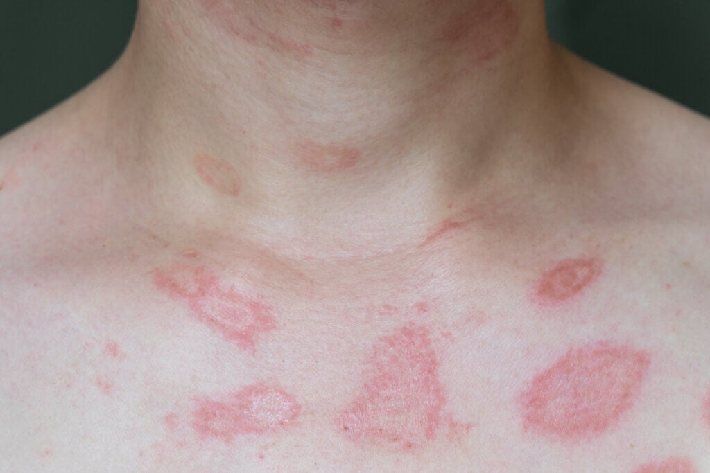Skin Allergies: Everything You Need to Know