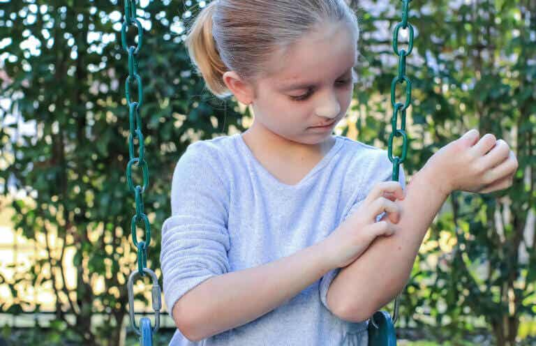 Las 13 alergias más comunes