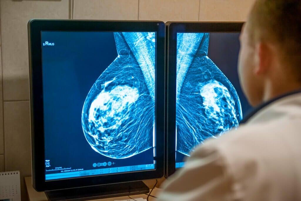 Estágios do câncer de mama