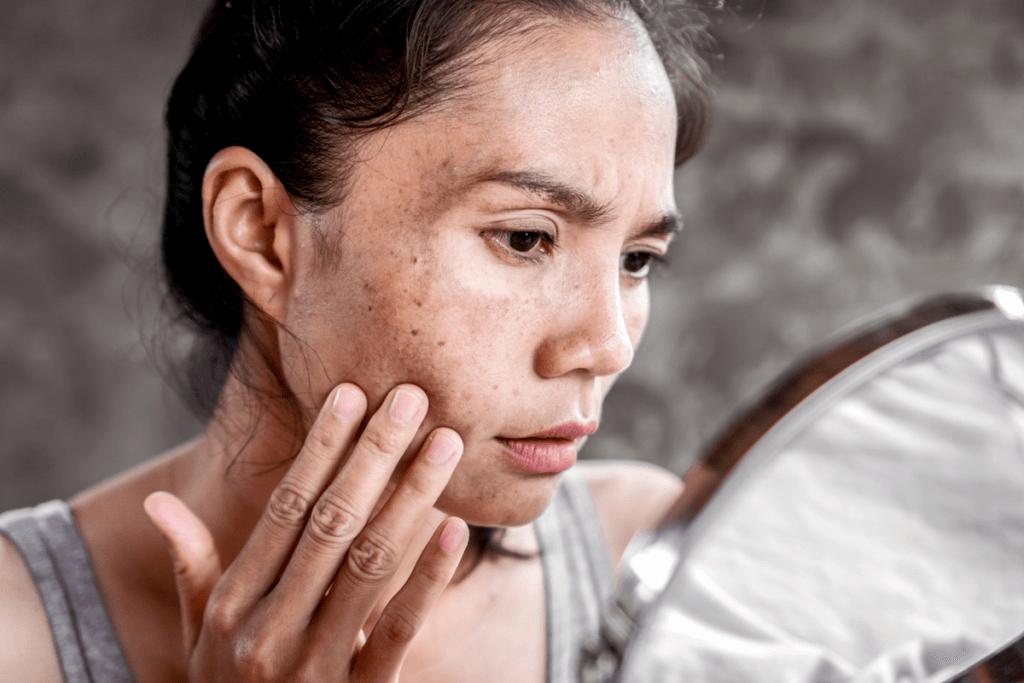 Tipos de manchas no rosto