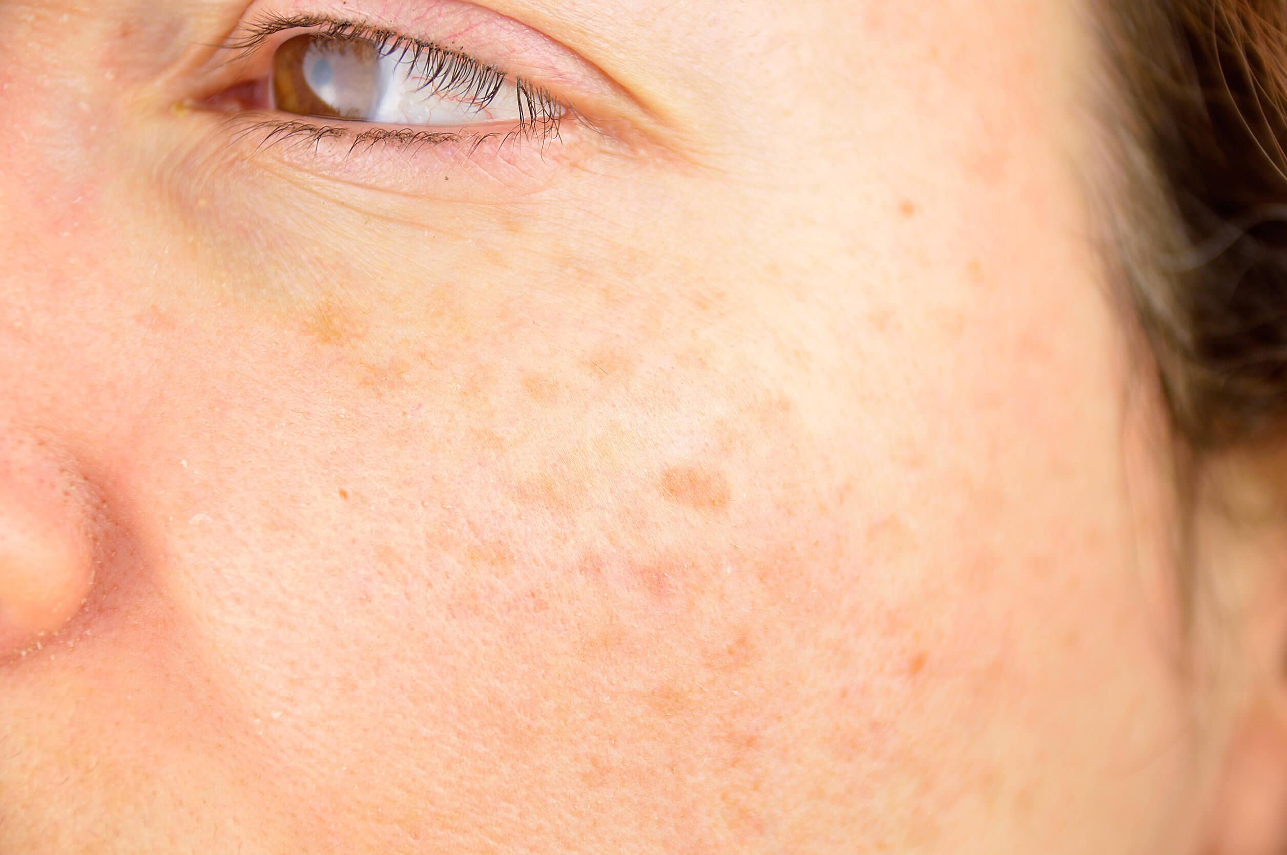 Manchas en la piel: tipos, causas y tratamiento