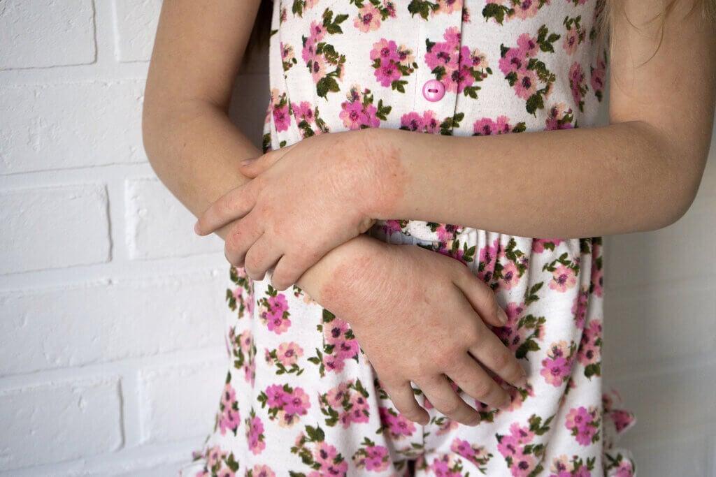 Causas de la dermatitis de contacto