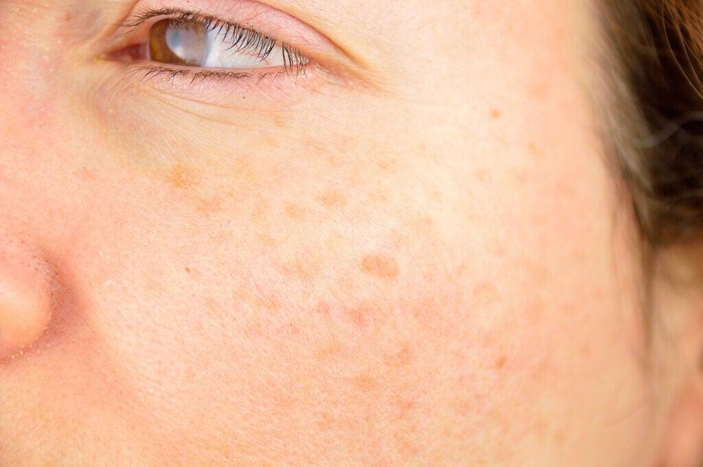 Taches sur la peau: types, causes et traitement