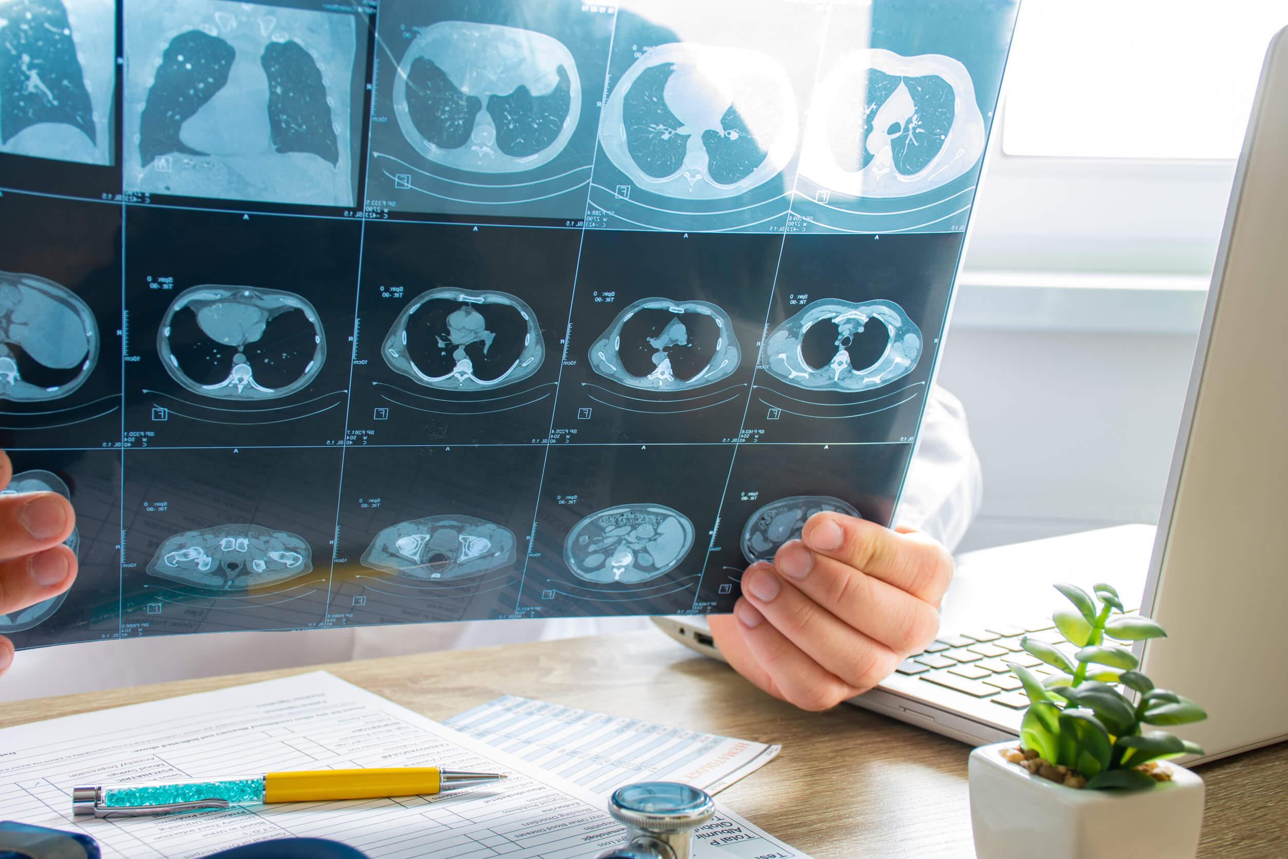 La embolia pulmonar puede diagnosticarse con técnicas de imagen