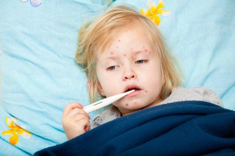 Diferencias entre sarampión y varicela