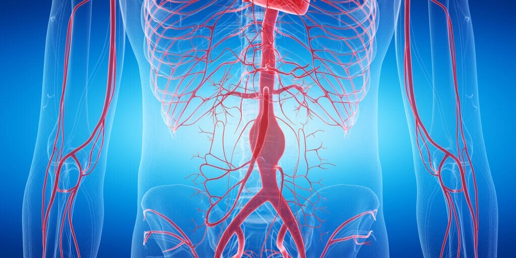 The 3 Types of Aneurysms