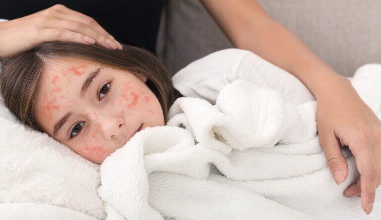 Las 10 diferencias entre rubéola y sarampión