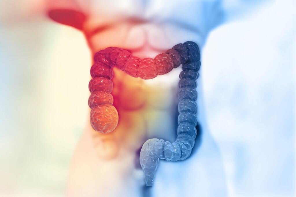 Comment prévenir le cancer du côlon?