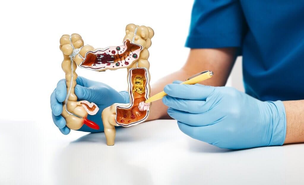 Tipos de cáncer de colon