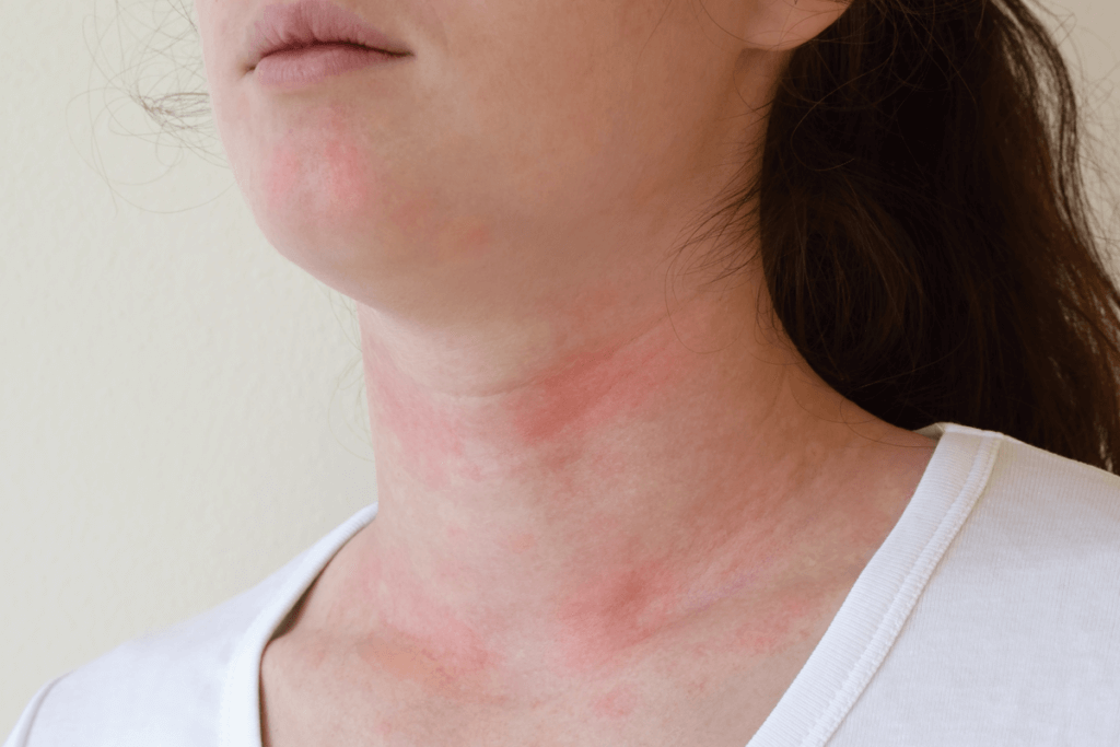 What Is Chronic Urticaria?