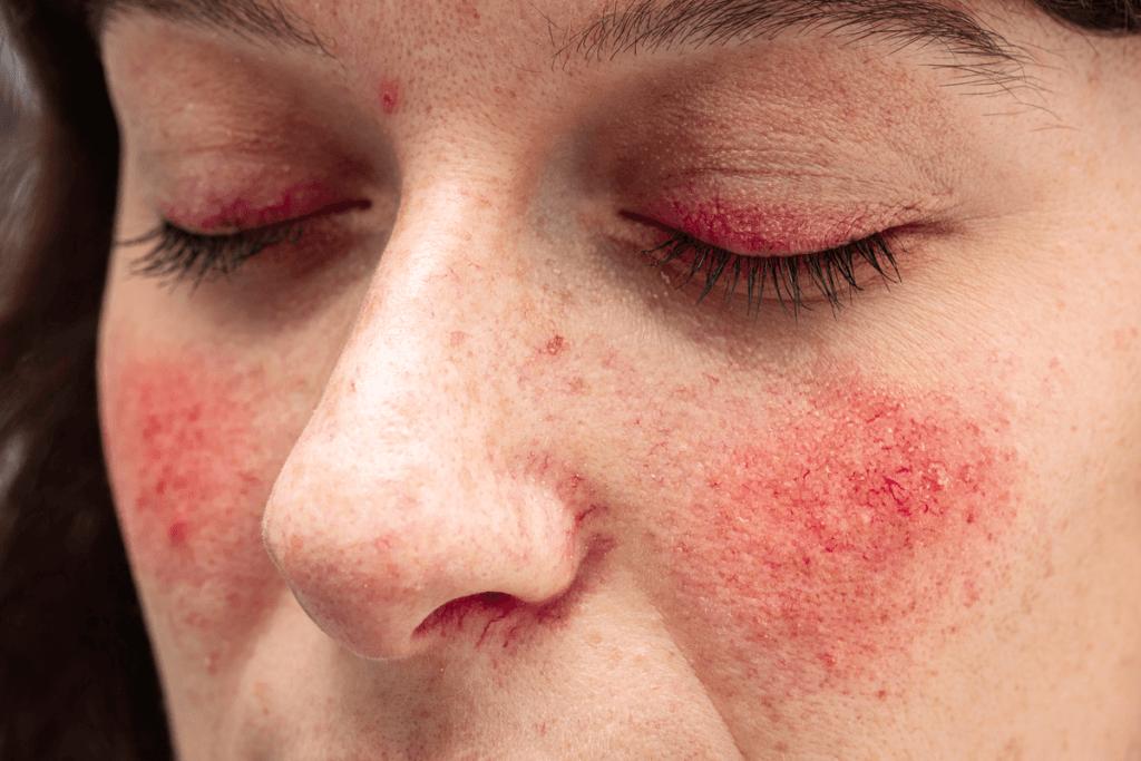 Vivre avec la rosacée: causes, symptômes et traitements