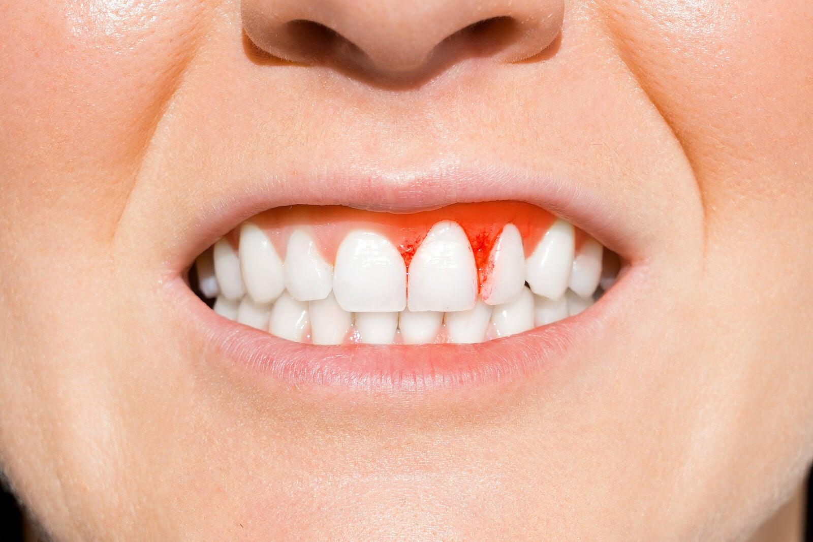 Entre las enfermedades bucales comunes está la gingivitis
