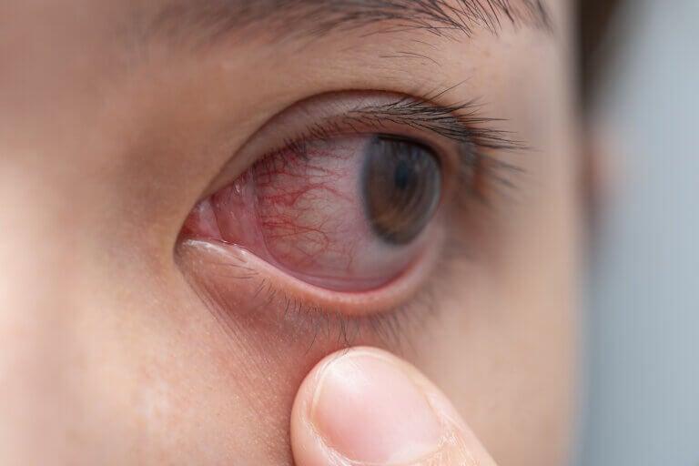 Las 10 enfermedades oculares más comunes