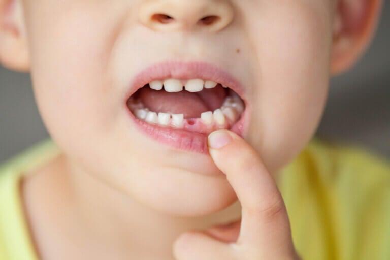Los 5 tipos de dientes y sus características
